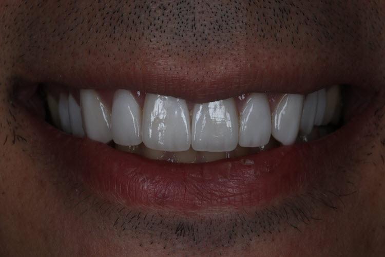 holywood smile