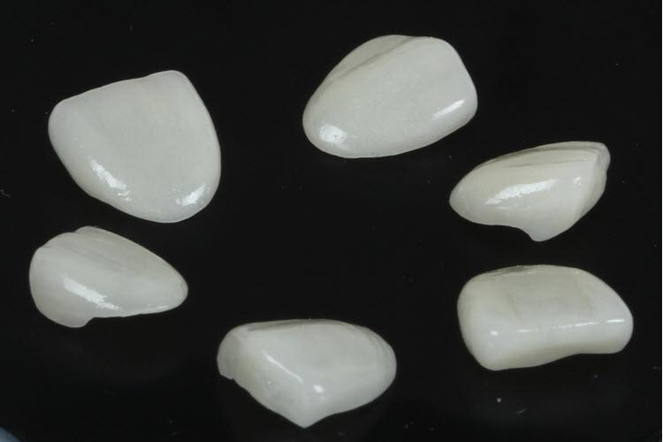 porselen kaplamalar